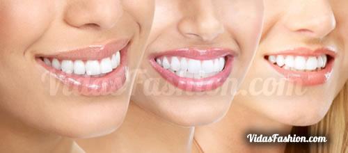 dientes blancos casa